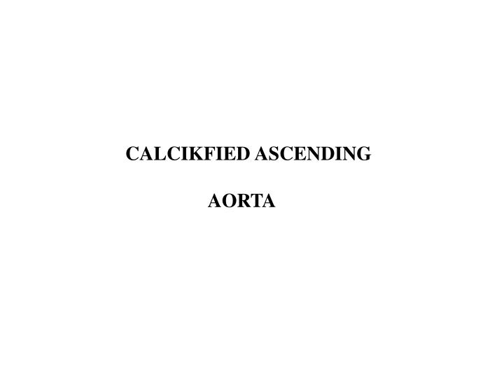 CALCIKFIED ASCENDING