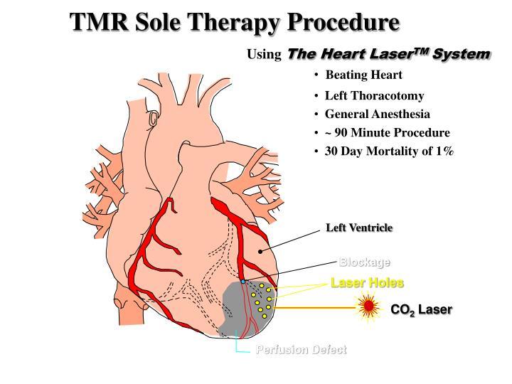 TMR Sole Therapy Procedure