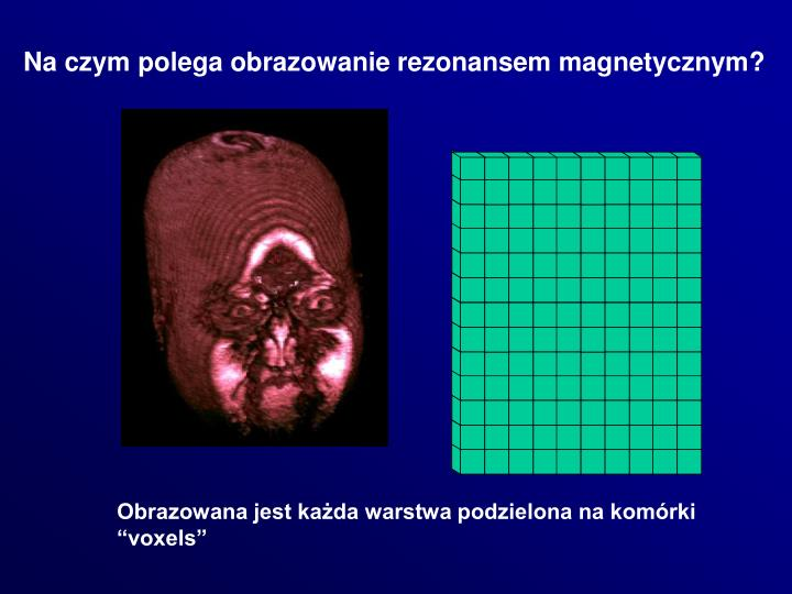 Na czym polega obrazowanie rezonansem magnetycznym