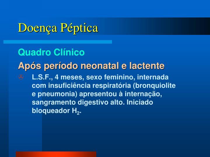 Doença Péptica