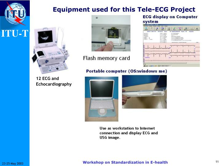 Equipment used for this Tele-ECG Project