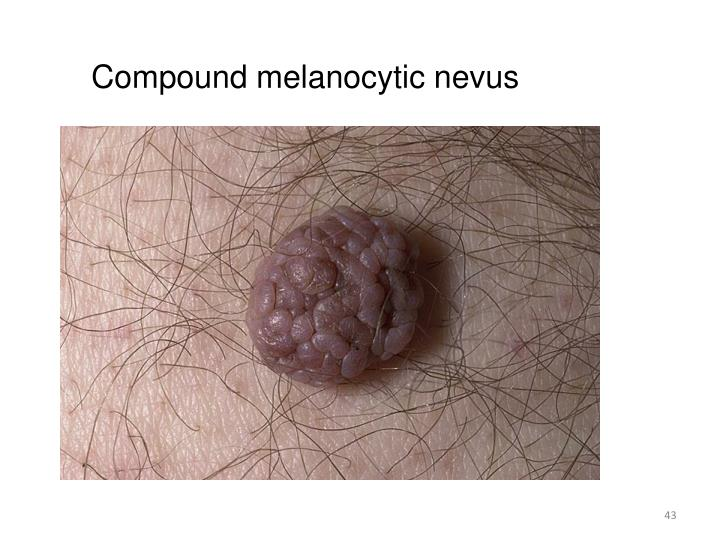 Compound melanocytic nevus