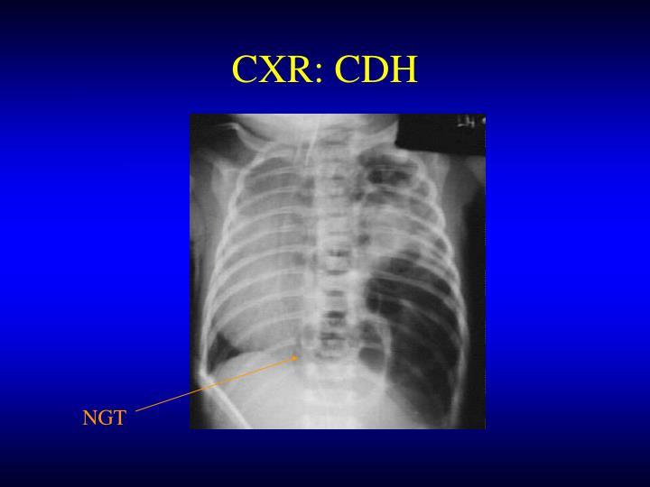 CXR: CDH