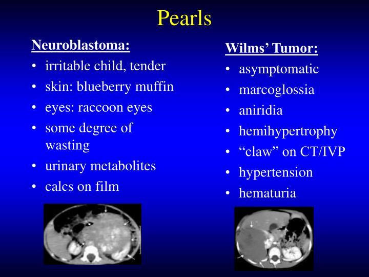 Neuroblastoma: