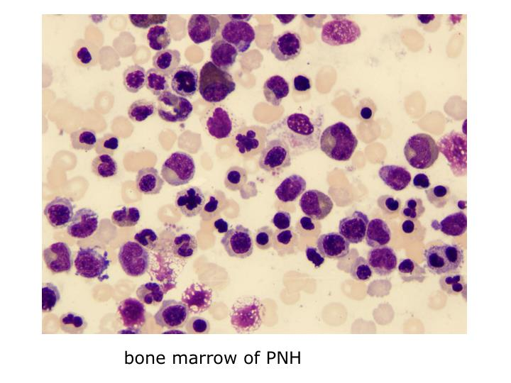 bone marrow of PNH