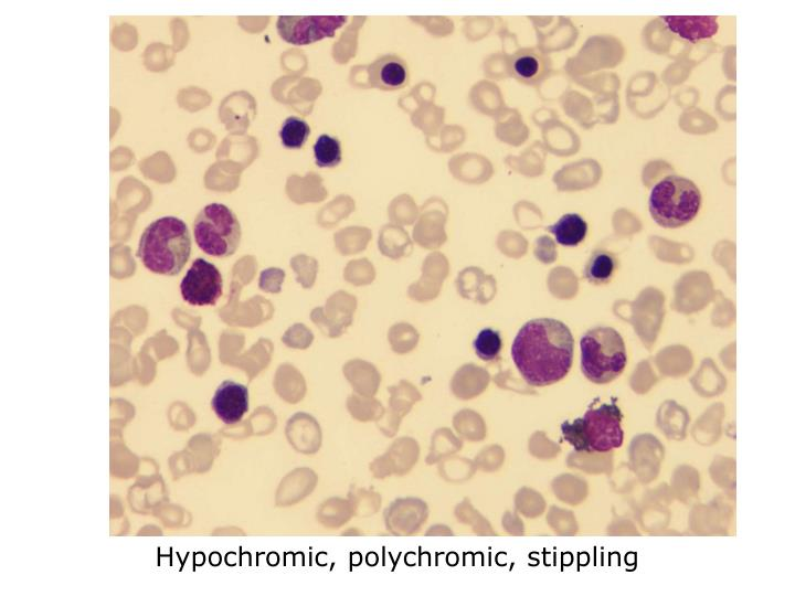 Hypochromic, polychromic, stippling