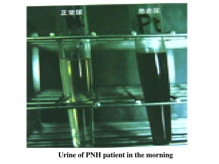 Urine of PNH patient in the morning