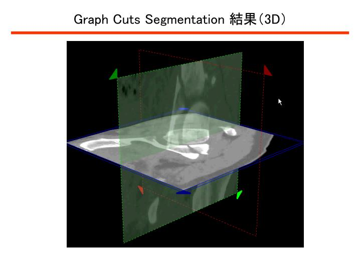 Graph Cuts Segmentation
