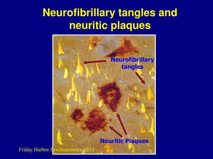 Neurofibrillary tangles and