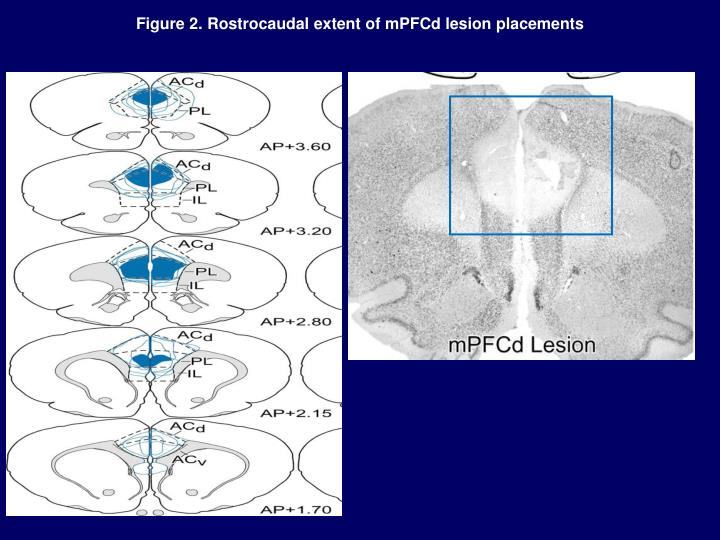 Figure 2. Rostrocaudal extent of mPFCd lesion placements