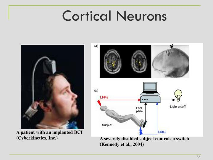Cortical Neurons