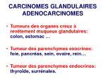 carcinomes glandulaires adenocarcinomes