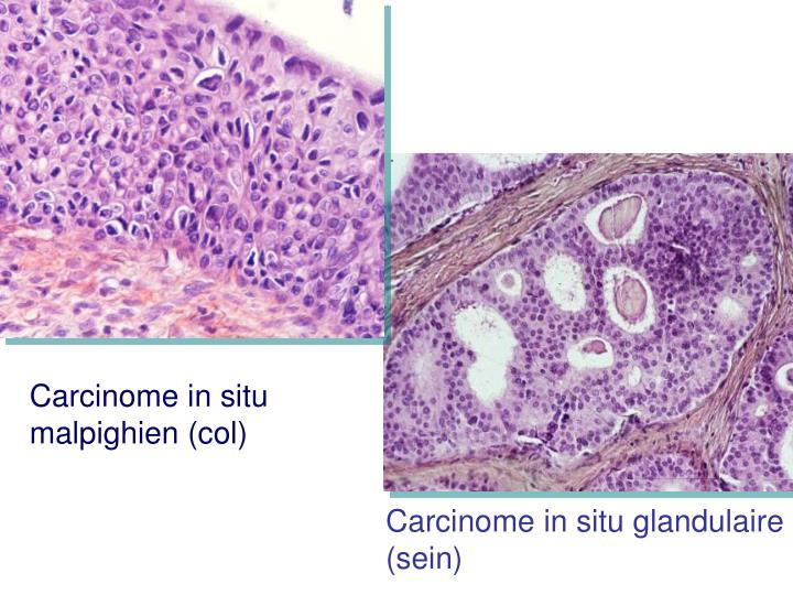 Carcinome in situ malpighien (col)