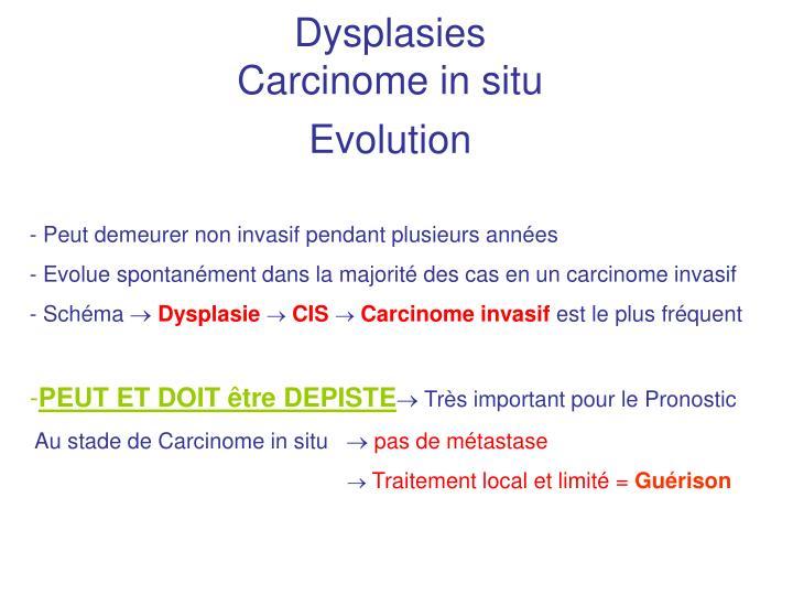 Dysplasies