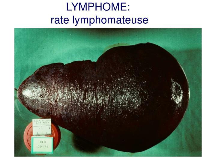 LYMPHOME: