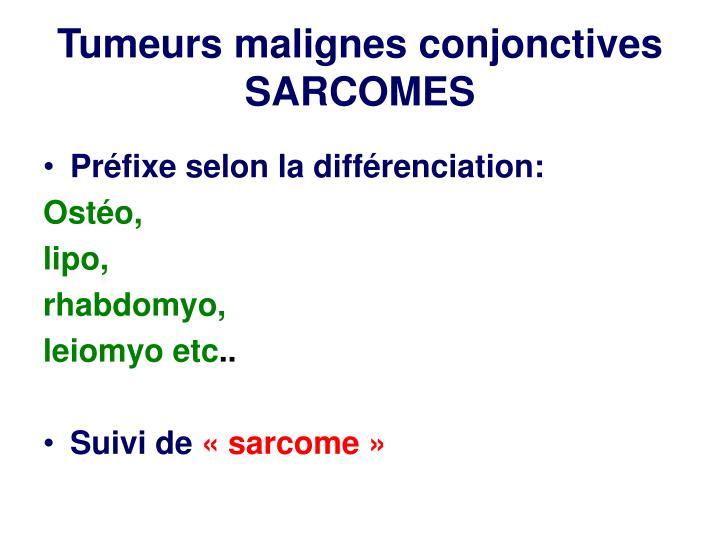 Tumeurs malignes conjonctives