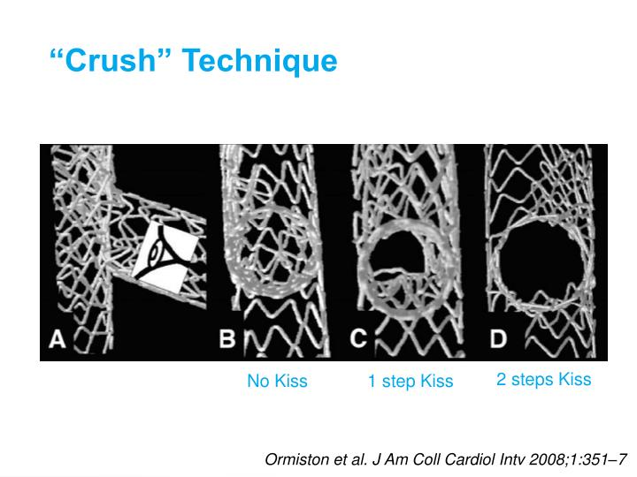 """Crush"" Technique"