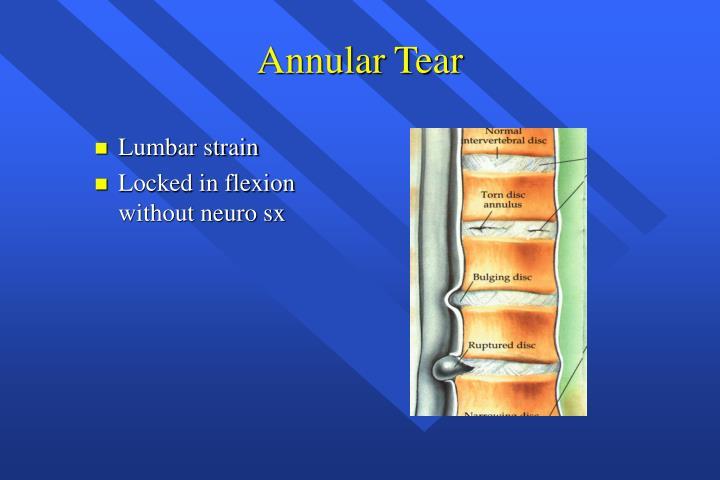 Annular Tear
