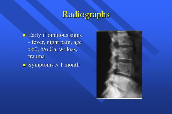 Radiographs