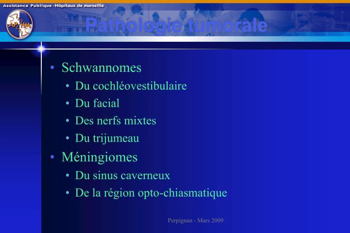 Pathologie tumorale