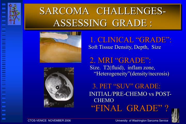 SARCOMA   CHALLENGES- ASSESSING  GRADE :