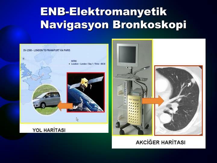 ENB-Elektromanyetik Navigasyon Bronkoskopi