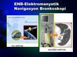 enb elektromanyetik navigasyon bronkoskopi