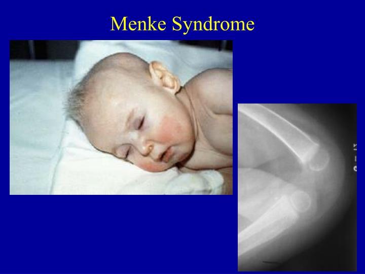 Menke Syndrome
