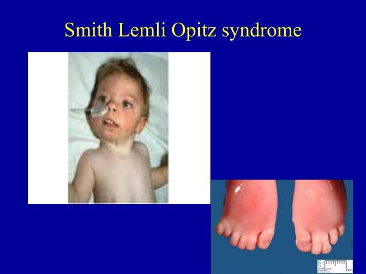 Smith Lemli Opitz syndrome