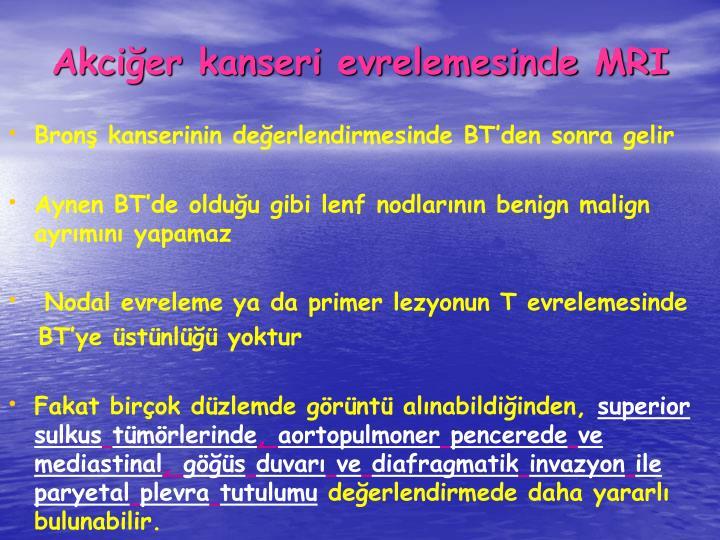 Akcier kanseri evrelemesinde MRI
