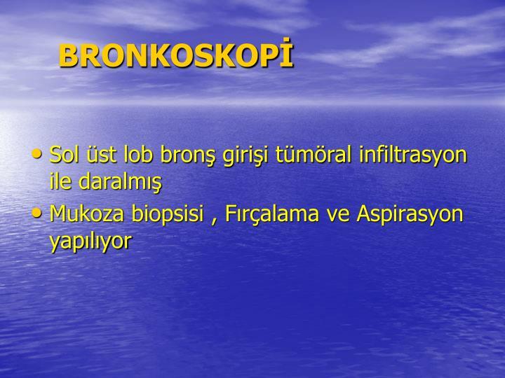 BRONKOSKOP