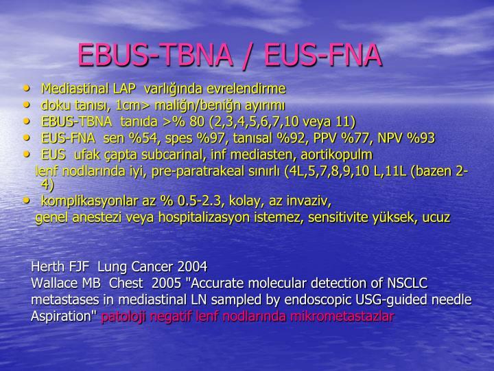 EBUS-TBNA / EUS-FNA