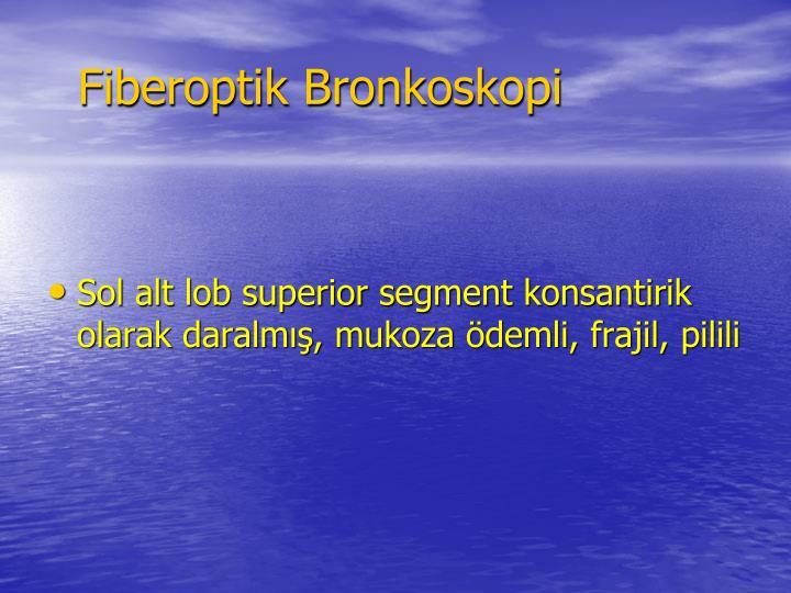 Fiberoptik Bronkoskopi