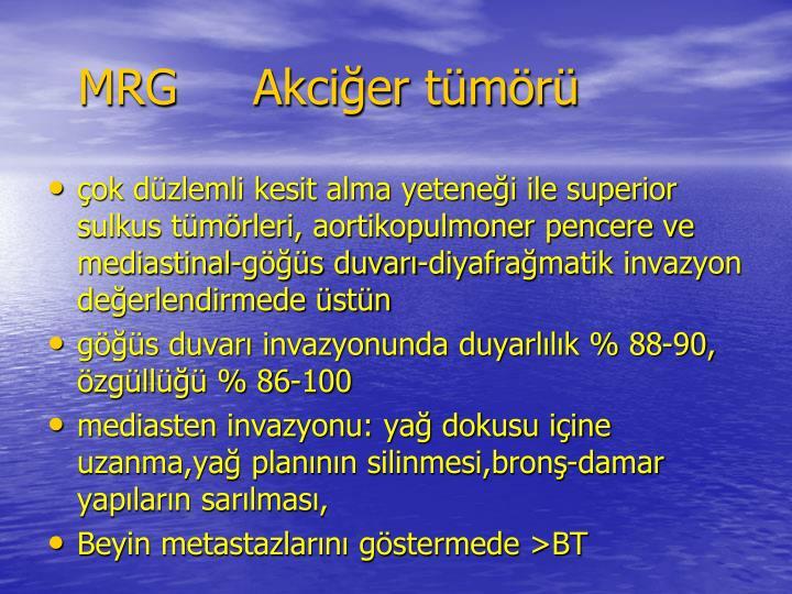 MRG     Akcier tmr