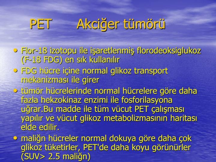 PET      Akcier tmr