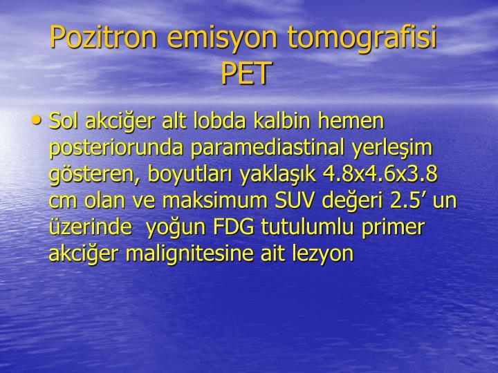 Pozitron emisyon tomografisi