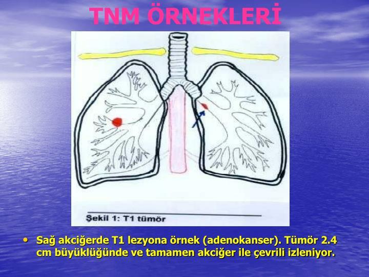 TNM RNEKLER