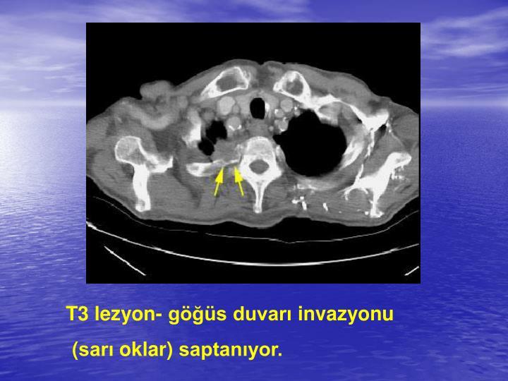 T3 lezyon-