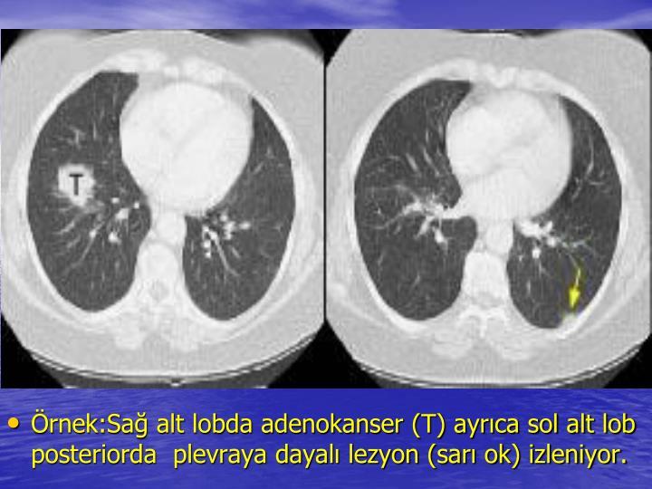 rnek:Sa alt lobda adenokanser (T) ayrca sol alt lob posteriorda  plevraya dayal lezyon (sar ok) izleniyor.