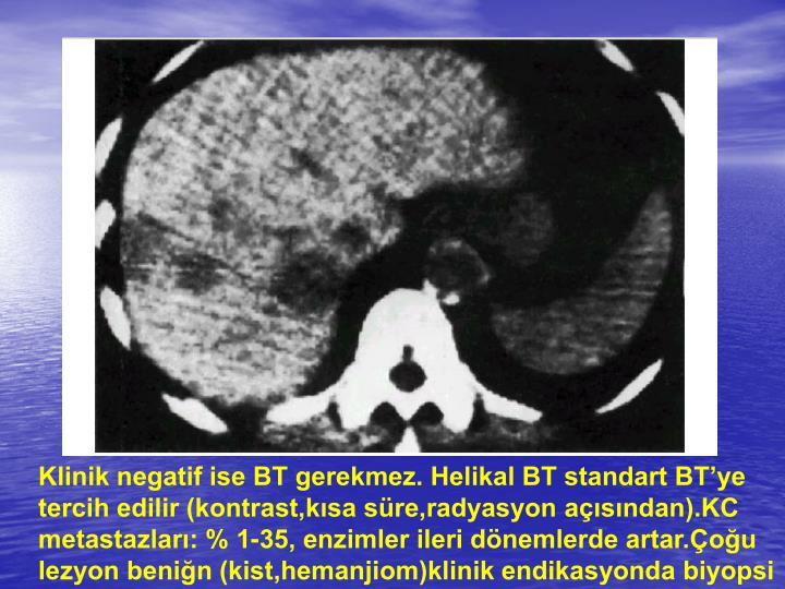 Klinik negatif ise BT gerekmez. Helikal BT standart BTye tercih edilir (kontrast,ksa sre,radyasyon asndan).KC metastazlar: % 1-35, enzimler ileri dnemlerde artar.ou lezyon benin (kist,hemanjiom)klinik endikasyonda biyopsi