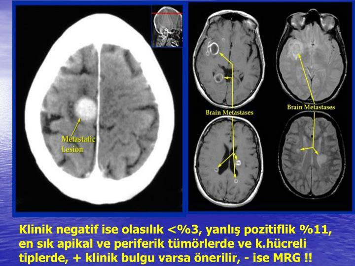 Klinik negatif ise olaslk <%3, yanl pozitiflik %11, en sk apikal ve periferik tmrlerde ve k.hcreli tiplerde, + klinik bulgu varsa nerilir, - ise MRG !!
