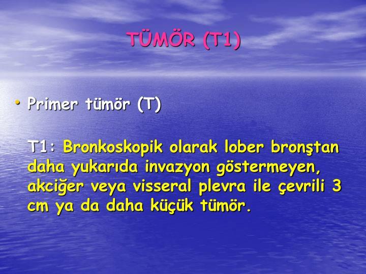 TMR (T1)