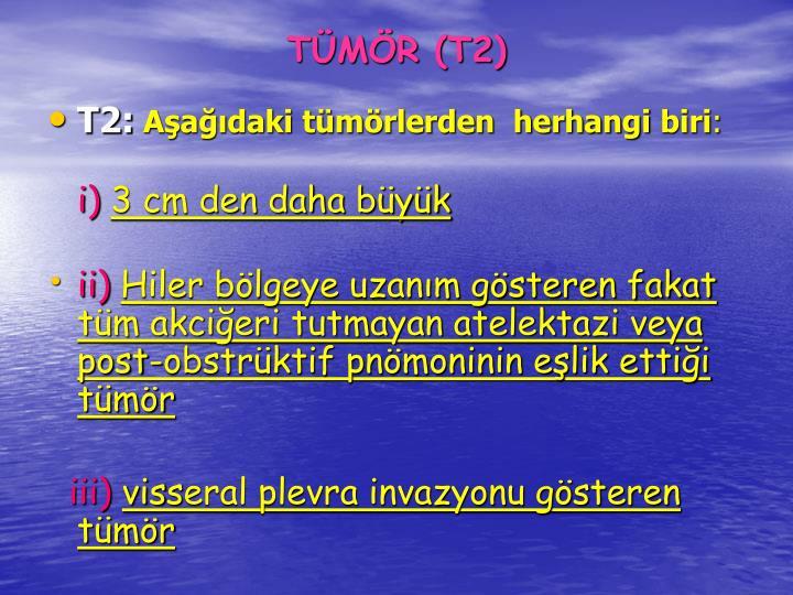 TMR (T2)