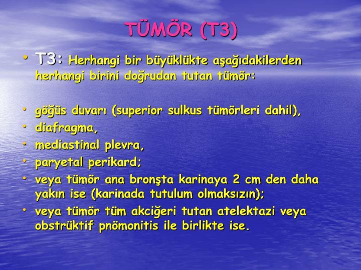 TMR (T3)
