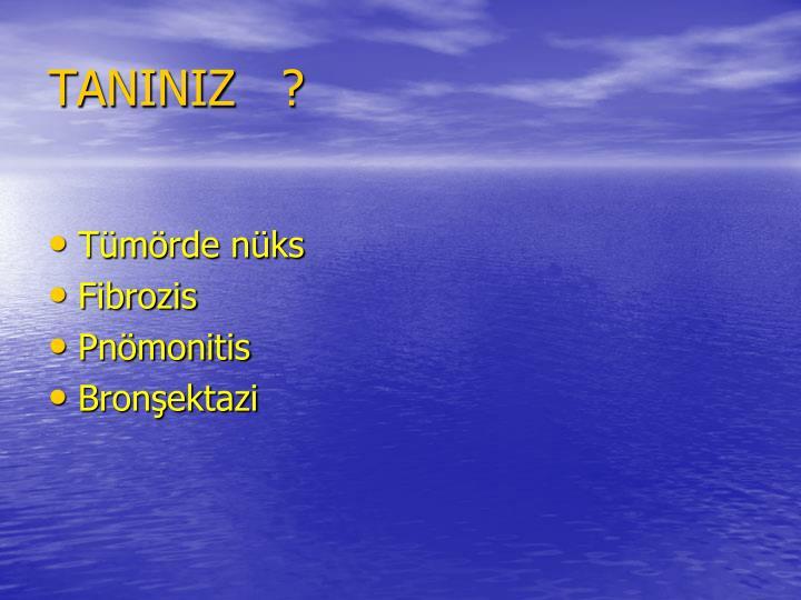 TANINIZ