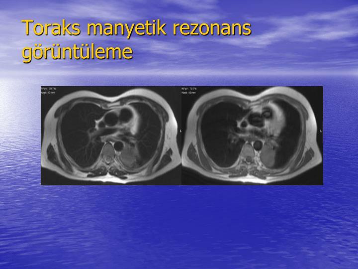 Toraks manyetik rezonans grntleme