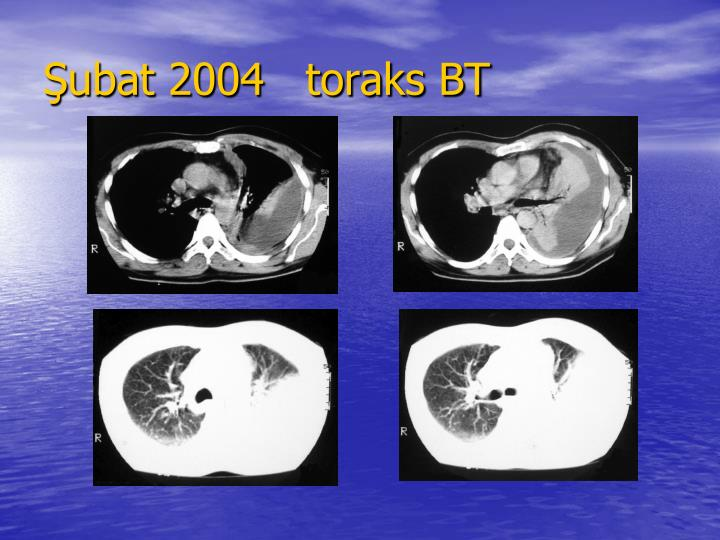 ubat 2004   toraks BT