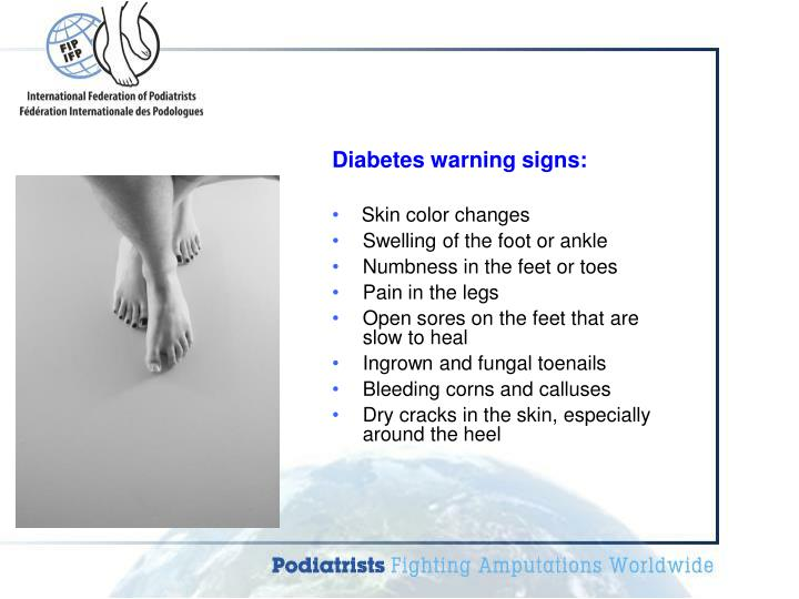 Diabetes warning signs: