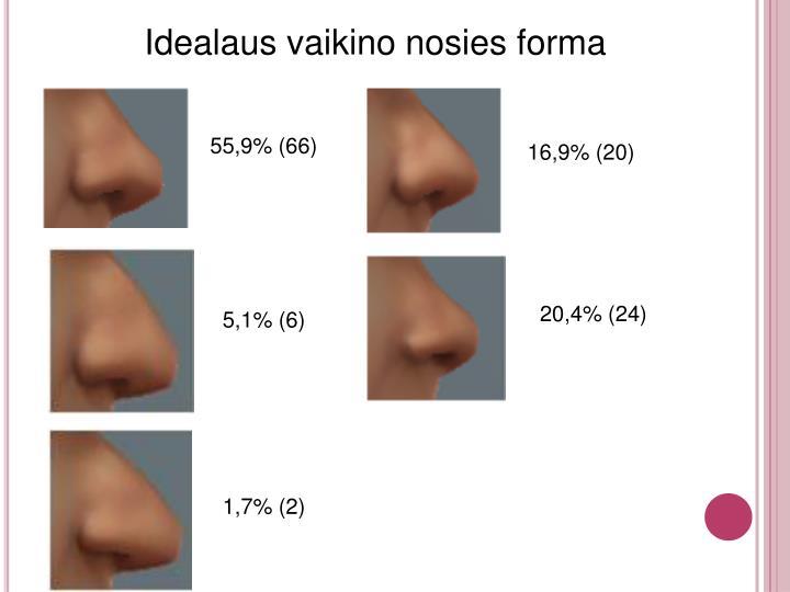 Idealaus vaikino nosies forma