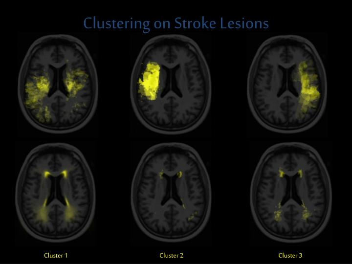 Clustering on Stroke Lesions